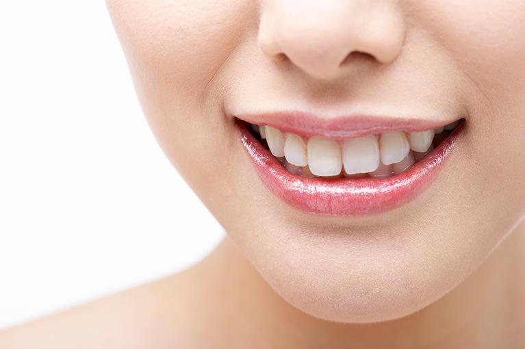 歯を気軽に白くできる歯のマニキュア
